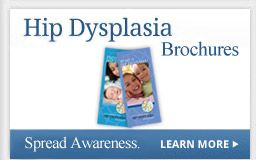 Hip Dysplasia Brochures - brochures and videos on preventing developmental dysplasia of the hip with hip-healthy swaddling and infant product best practices.