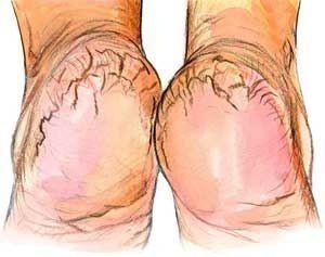 ПРОСТО ВОЛШЕБНЫЙ КРЕМ ДЛЯ ПЯТОК.      Просто волшебный крем, который избавит от некрасивых трещин на пятках, оздоровит и смягчит кожу ног. Также этот крем замечательно ухаживает за ногтями.…
