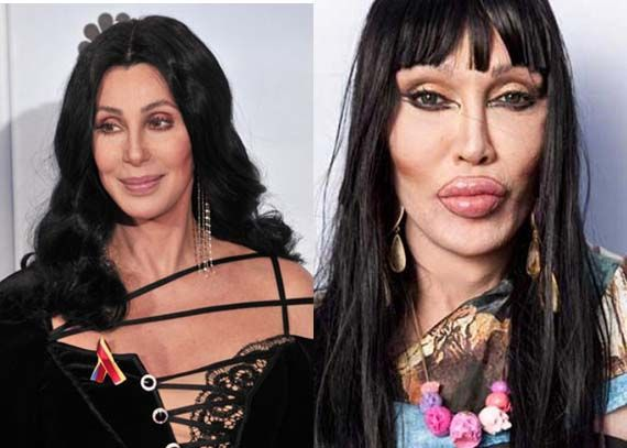 Plastic Surgery Gone Bad Pictures Google Search
