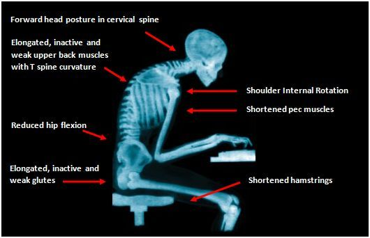 Sitting at a Computer All Day? These 4 Stretches Will Help!