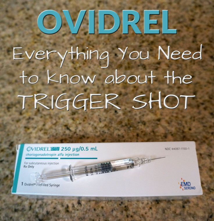 Do you need trigger shot with clomid