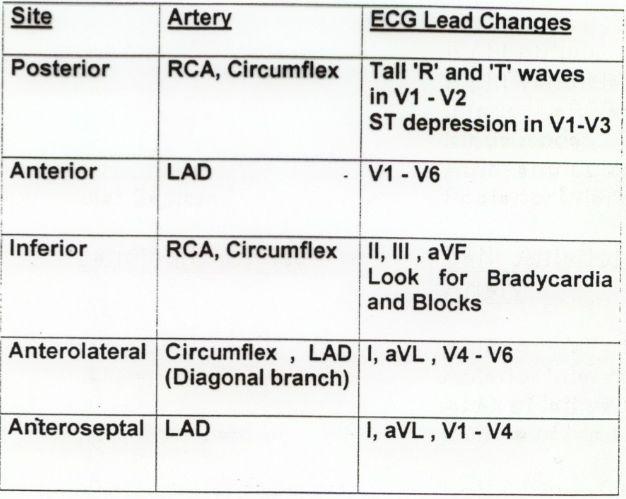 ECG Class - Keeping ECGs Simple: Posterior MI - #ECGclass case 29