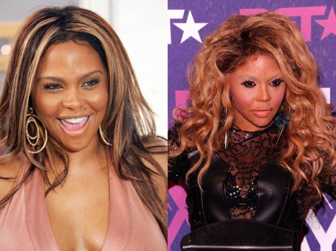 Lil Kim looks like she got a full face transplant. Actually, she kind of  did. She reportedly got a nose job, cheek implants and lip… | Before and  After