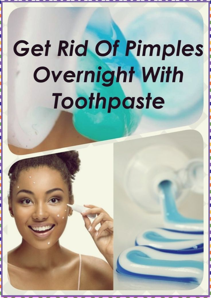 Get Rid Of Pimples Overnight With Toothpaste & 3 Other ...