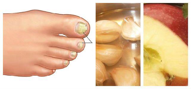 El tratamiento de las uñas en los pies de la medicina