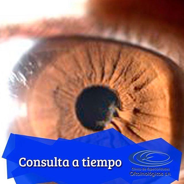 ¿ #SabíasQue el riesgo de padecer #Glaucoma es mayor en pacientes con antecedentes familiares o que sufren de miopía? Solicita tu cita prioritaria los fines de semana en el tel: 448 0408 ext 109 #CirugíasCeo www.ceomedellin.com