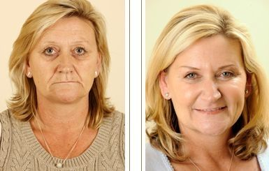 Receive An Oriental Non-Surgical At Home Facelift With Face Restoration Gymnastics