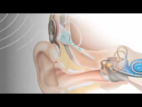 """How Cochlear Implants Work"""