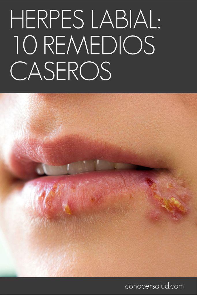Si alguna vez has tenido herpes labial, sabrás que no estás solo. Alrededor del 90% de las personas tienen herpes labial al menos una vez en la vida. Los herpes labiales son causados por el virus del herpes simple, una infección extremadamente contagiosa que puede propagar los síntomas de los herpes labiales a otras partes del cuerpo. El tratamiento para los herpes labiales puede incluir cremas antivirales a base de hierbas y lisina y productos farmacéuticos. Los remedios caseros para los…