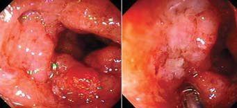 Infección por Citomegalovirus en paciente con colitis ulcerosa sin tratamiento inmunosupresor