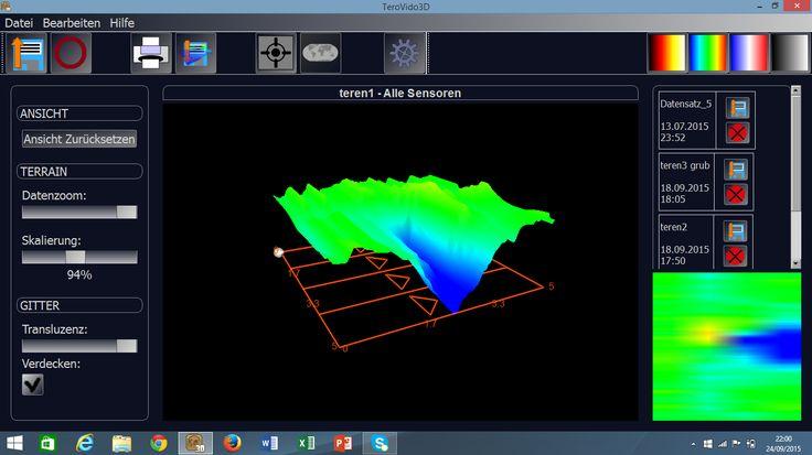 یک نمونه اسکن که با دستگاه تصویری  تروویدوی 3 بعدی گرفته شده.