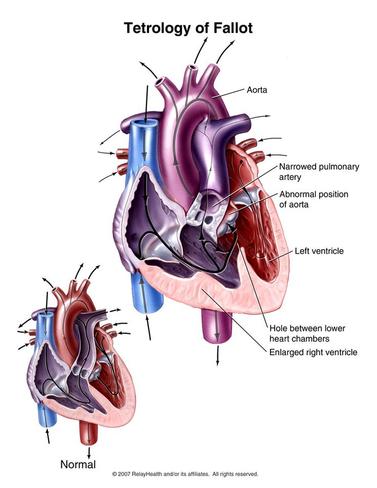 9 best Nursing-PEDS cardiac images on Pinterest | Nursing schools ...