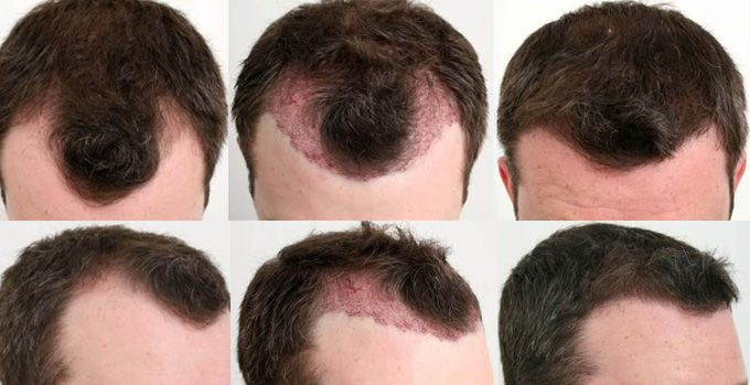 Satyam hair transplant is one of the best hair transplant centre. We provide all the hair transplant treatment at very nominal prices. Dr Krishan Arora is the head of the clinic. He is one of the genuine surgeon of specially FUE technique and complete all work very carefully. For more details visit our website.