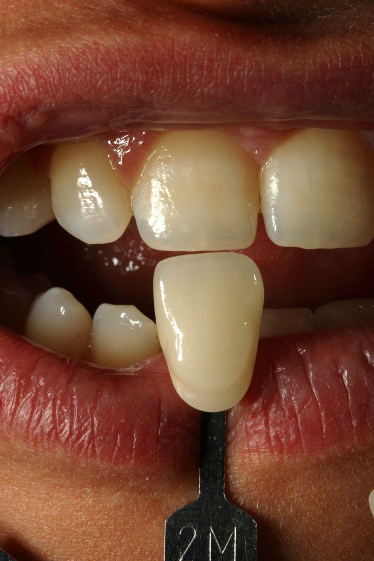 All'estero per il sbiancamento dentale? Sì, se si vuole avere denti bianchi e perfetti! Vi invitiamo a vedere di più qui e contattaci subito! http://www.intermedline.com/dental-clinics-romania/ #clinicadentale #clinicadentaleinRomania #clinicaodontoiatrica #clinicaodontoiatricainRomania #sbiancamentodentale #sbiancamentodentaleinRomania #sbiancamentodidenti #sbiancamentodidentiinRomania #dentista #dentistainRomania #turismodentale #turismodentaleinRomania