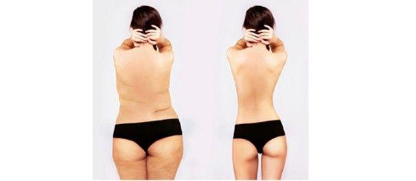 Elimine a gordura localizada das costas com treino funcional