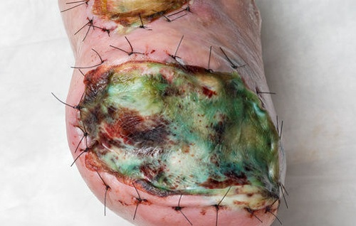 Infected skin graft (gross human anatomy) | The Human Body ...