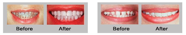 Veneer - Doha Specialized Dental Center Porcelain Veneers are ultra-thin, custom-made porcelain shells of tooth-colored ceramic materials designed to cover the front surface of teeth to improve their appearance or repair damage. Porcelain Veneers are prepared in a dental lab based on a mold provided by the dentist and they are bonded to the front side of teeth changing their color, shape, size or length.