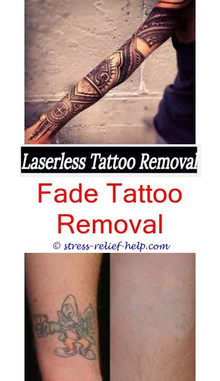 Excision Tattoo Removal Can You Get A Tattoo Removed While