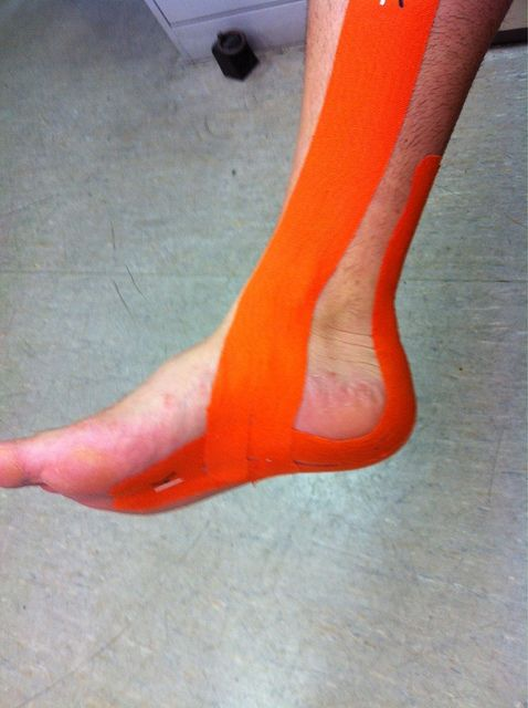 My foot for the last week! really??? 2 weeks before marathon? KT Tape plantar fasciitis application......