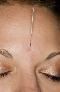 Acupuncture for treating acne.