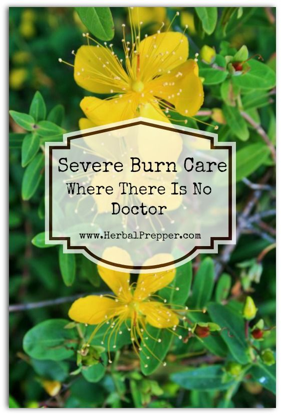 Severe Burns Where There Is No Doctor - Herbal Prepper