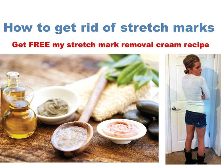 How to get rid of stretch marks fast, My natural stretch mark removal cream and the derma roller