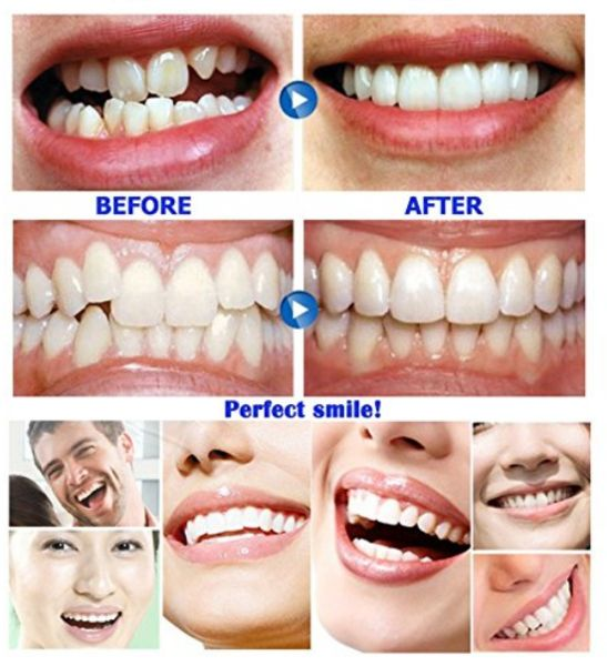 Only $19.99 !!!(Last Day)INSTANT SMILE VENEER - Upper & Lower Included – rollercoaster1