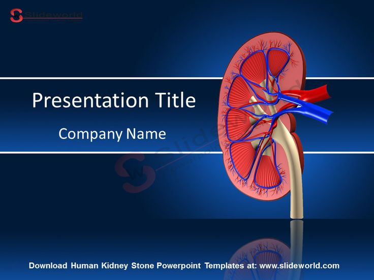 Human Kidney Stone Powerpoint Templates - SlideWorld Download Human Kidney Stone…