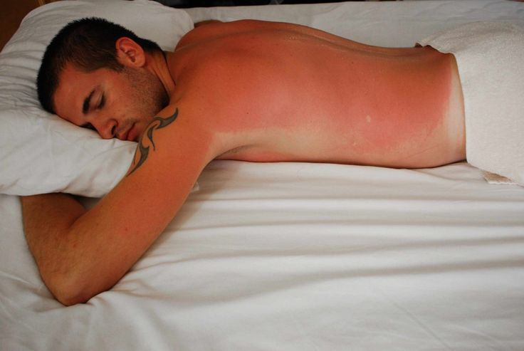 The most effective sunburn treatment simply helps ease your discomfort