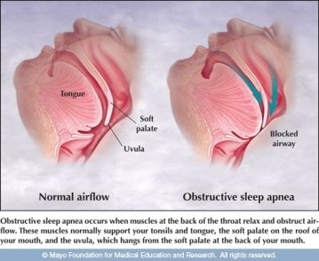 how-to-cure-sleep-apnea-naturally-at-home-without-CPAP