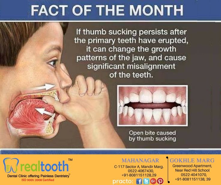 Lack of proper #dentalcare can lead to other health risks as well.So, Get #regular #DentalCheck-Up. Visit us today. To know more details Call@ +91 8081151128-29-38-39 #DentalSurgeonLucknow #DentalImplantsLucknow