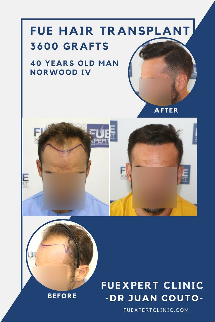 3600 Grafts - FUE Hair Transplant at FUExpert Clinic by Dr Juan Couto - Madrid, Spain