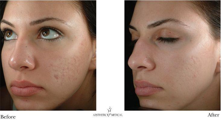 #acne laser treatment #skin rejuvenation #photo facial treatment for acne
