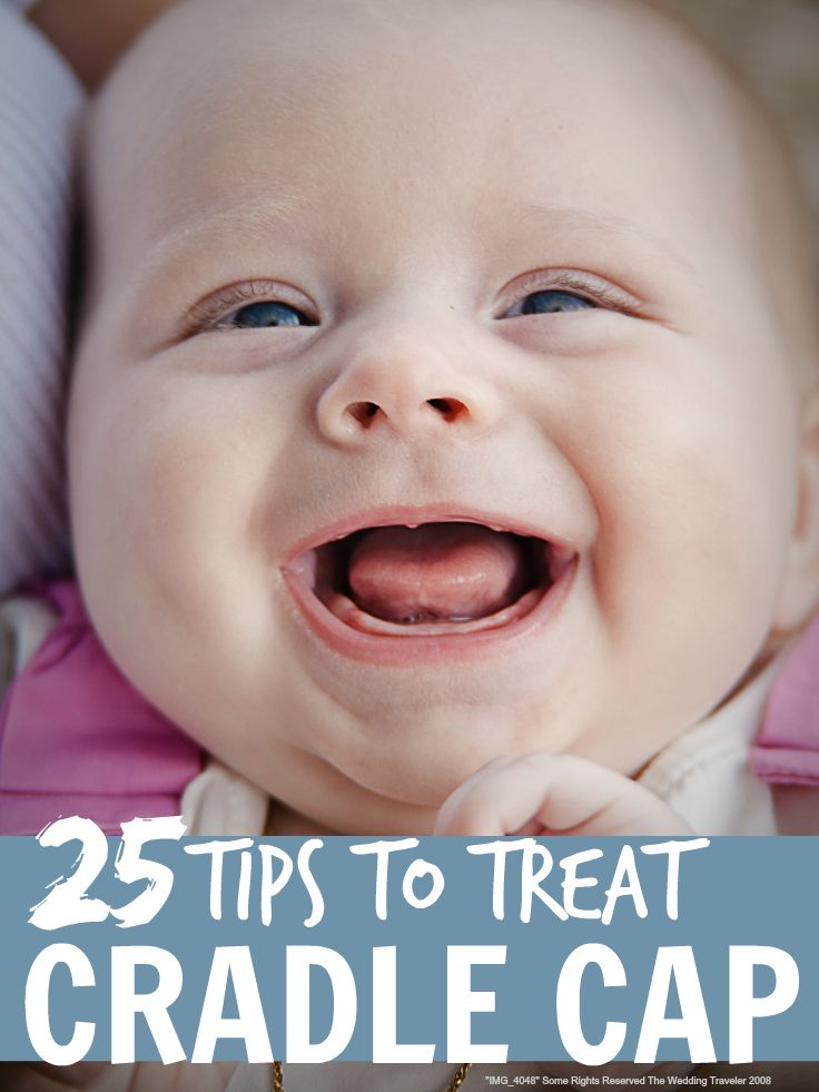 Cradle cap tips - all sorts of tips on how to treat cradle cap in babies and toddlers ...