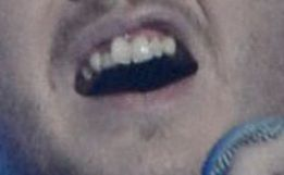I wonder, what will James Arthur have done to his teeth after winning X factor?