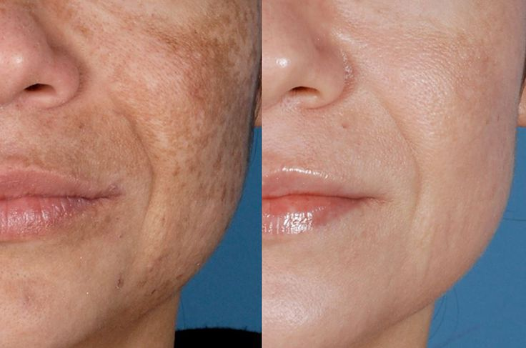 Have you noticed dark brown patches on your face? They could be melasma. Just try not to confuse them with freckles, birthmarks or age spots. Melasma patches and skin blemishes …