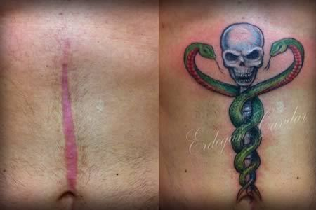 12+Coolest+Tattoos+Covering+Scars+(tattoos+over+scars,+tattoos+to+cover+scars)+-+ODDEE