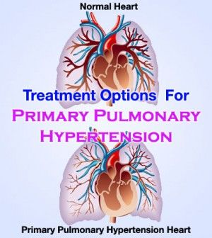 Primary #Pulmonary #Hypertension #Treatment Options - #PrimaryPulmonaryHypertension #PulmonaryHypertension #PulmonaryHypertensionTreatment #HeartDiseases