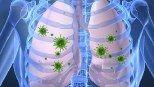 Pneumonia Diseases & Conditions | Pneumonia Symptoms, Causes, Treatment & Cure | TheHealthSite.com