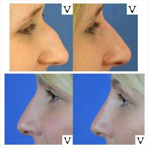 Small bump or big bump, dramatic or subtle results-I welcome all if it, these are some of the funnest tweaks I get to do in my practice!  Non-surgical rhinoplasty is our specialty www.visagesculpture.com #ilovefaces #ilovemyjob #face #beauty #taste #youth #young #proportion #selfesteem #juvederm #belotero #merz #galderma #allergan #botox #sculptra #chin #augmentation #jaw #reduction #face #slimming #visagesculpture #mashabanar #restylane #radiesse #botox #sculptr
