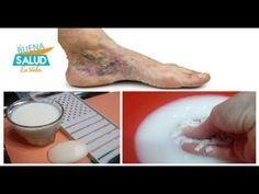 Eliminar Varices, Trombosis, Flebitis, Mala circulación, Hinchazón de pies - YouTube
