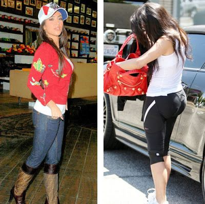 Plastic Surgery: Kim Kardashian Plastic Surgery Before and After Nose Job, Botox and Facelift