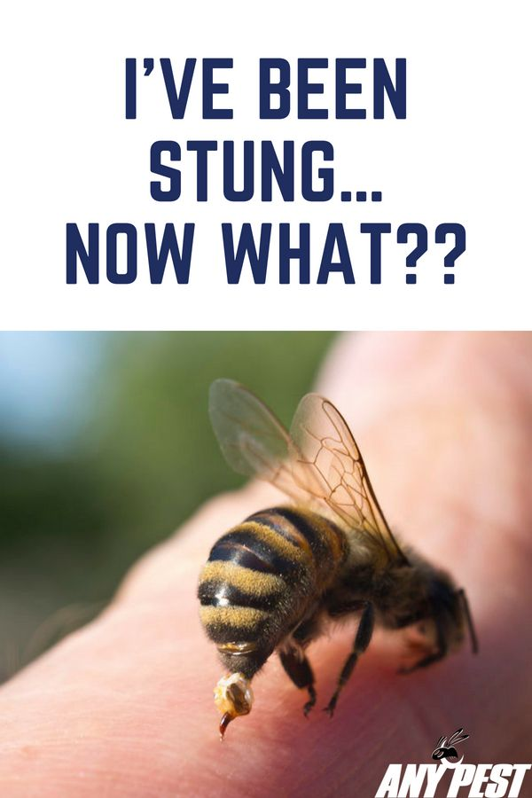 Stung By A Bee Here S What To Do You Should Never Disturb Squash Or Crush A Wasp Or Bee Because They Will Release An Alarm Ph Wasp Stings Hornet Sting Wasp