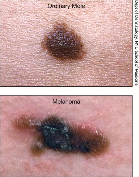 melanoma symptoms | melanoma warning signs | disease--illness, Human Body