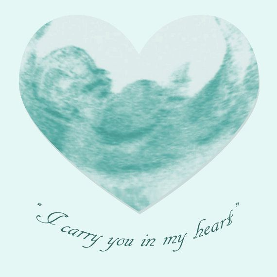 Miscarriage Remembrance Sonogram Frame I by UltrasoundArtwork
