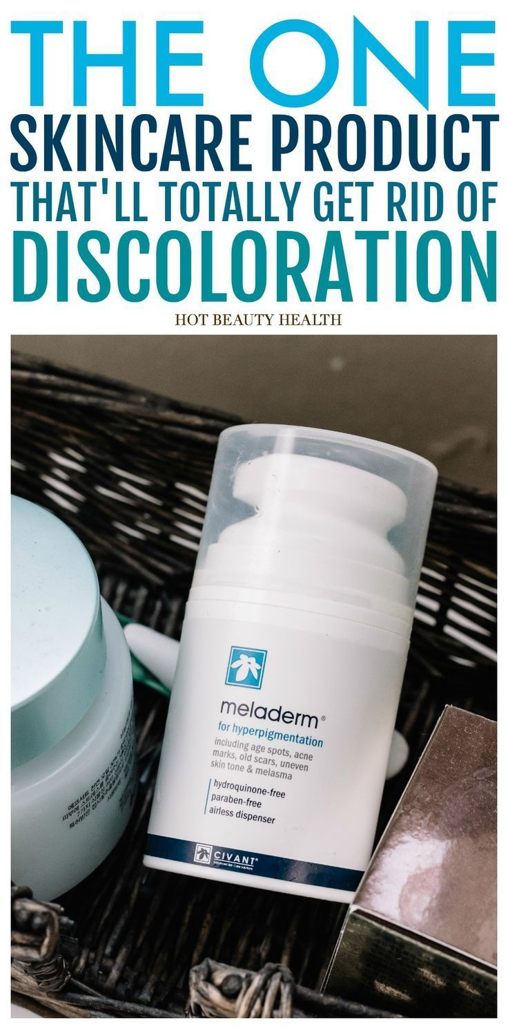 """Suffer from post-inflammatory Hyperpigmentation aka """"dark spots"""" caused by acne, birth control, scars or the sun? Here are 4 effective tips that will show you how to get rid of discoloration fast especially on black skin. Effective on the face, legs, and body and again great for african americans! Hot Beauty Health #skincare #skindiscoloration #skincaretips"""