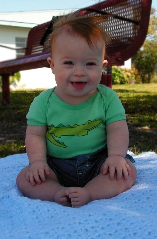 A baby with Down Syndrome :)