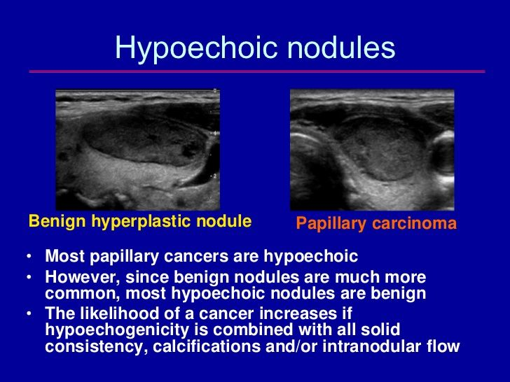 406 best images about thyroide on pinterest for Echogenic mural nodule