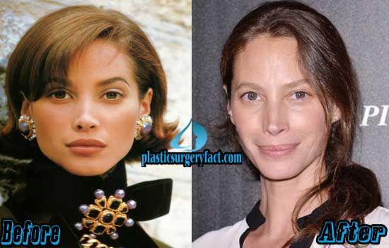 Christy Turlington Nose Job Before and After | plasticsurgeryfac…