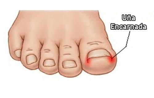 ¿Cómo evitar las uñas encarnadas?